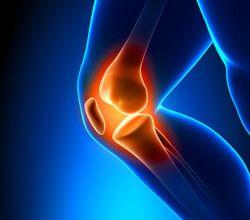 Knieschmerzen Joggen Anfänger - Albexal